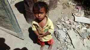 В Йемене из-за голода и болезней каждый день умирает 130 детей