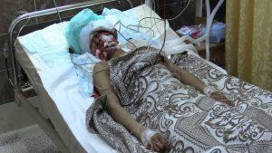 150 мирных жителей погибло с начала операции в Африне