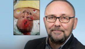 нападение на депутата АдГ Франка Магница