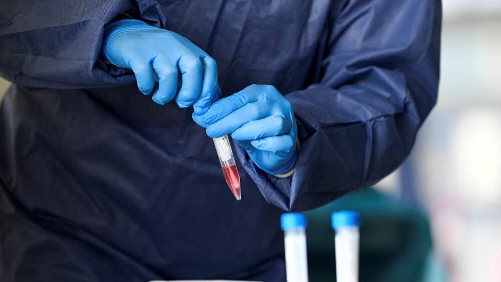 коронавирус, исследования проб